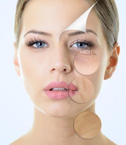 Tratament riduri la clinica dermatologica